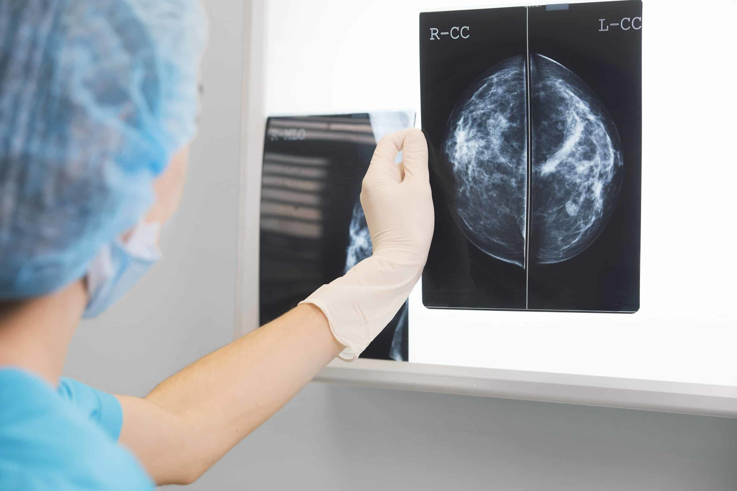 Doctor reviewing mammogram for breast cancer