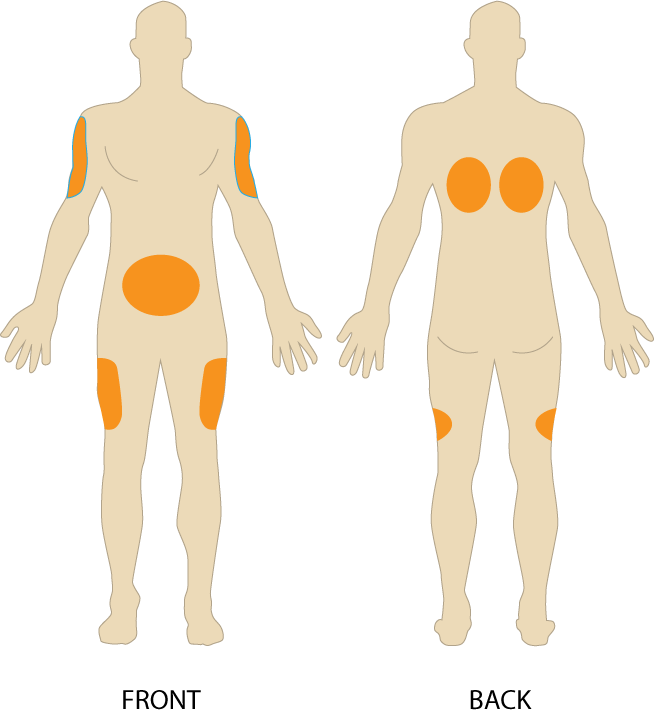 Insulin Injection Site Diagram Abdomen