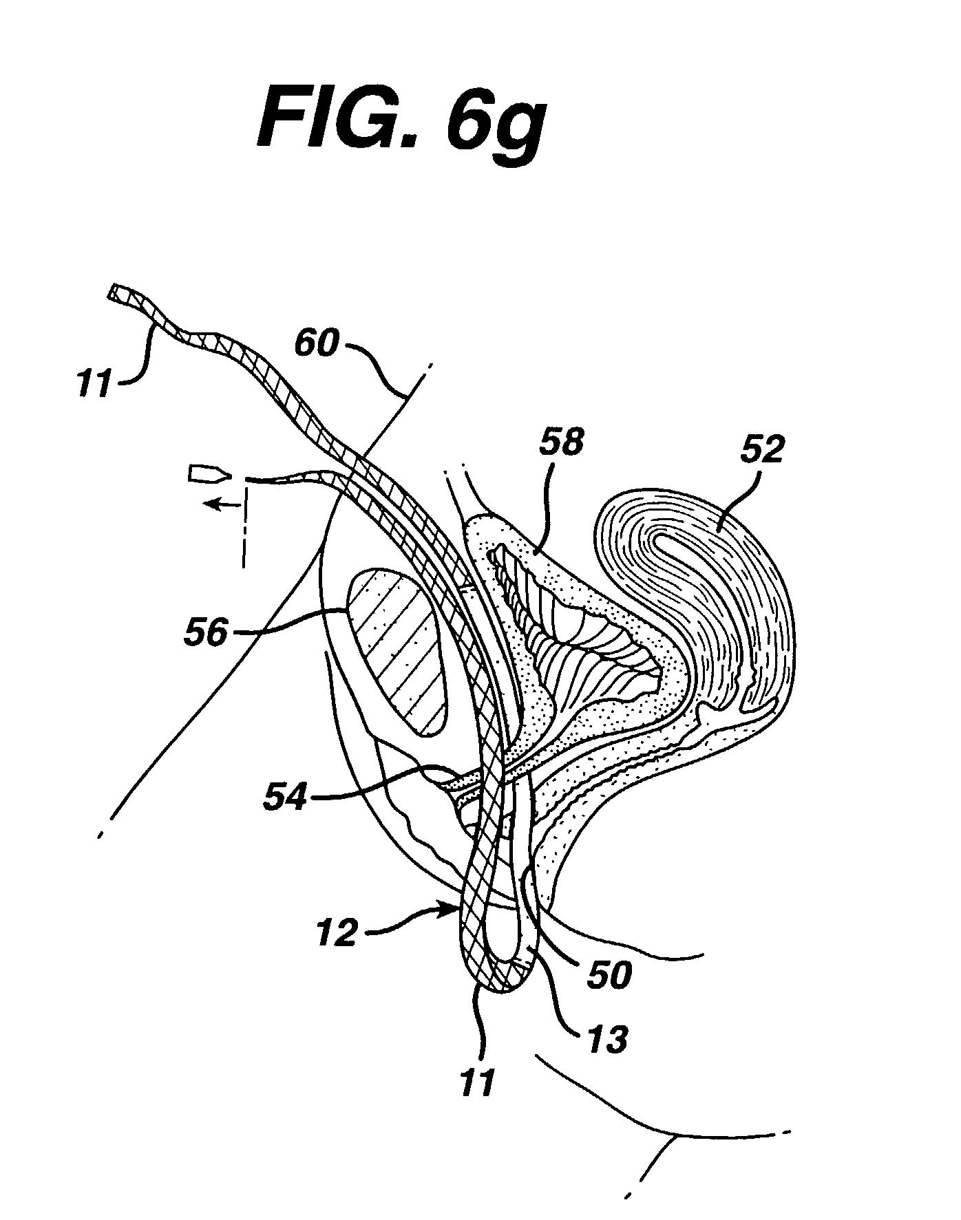 Engine embly diagram ariel wiring diagram at ww5 ww w freeautoresponder