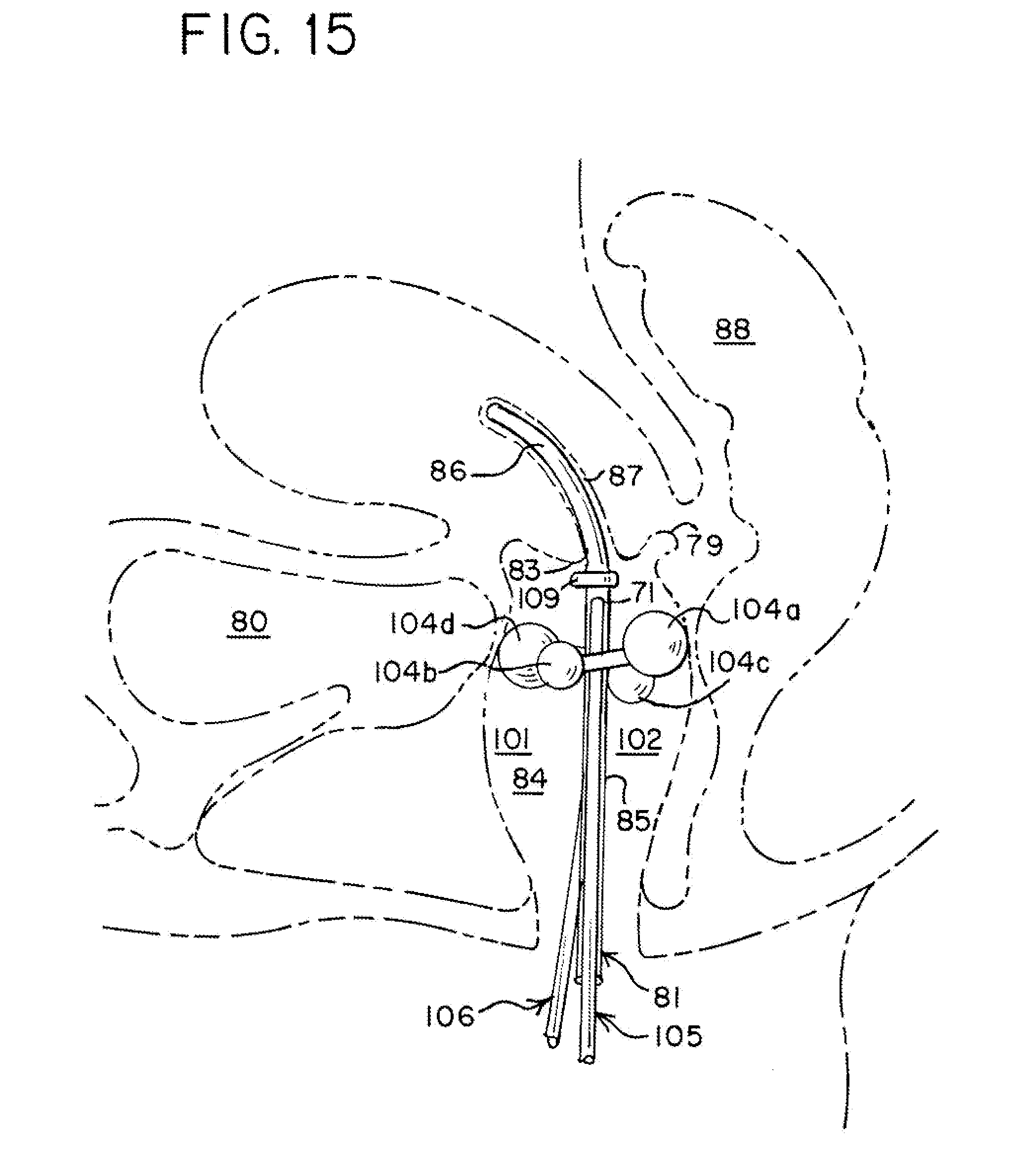 Us20130317276a1 20131128 d00010 patent us20130317276 brachytherapy tandem and ovoid implantation suzuki lt80 carb diagram at aneh