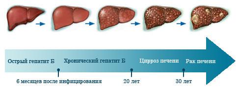 Ως ακολούθως η ηπατίτιδα μπορεί να αναπτυχθεί σε καρκίνο του ήπατος