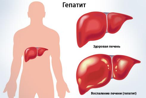 Το φάρμακο βοηθά στην αντιμετώπιση της ιικής ηπατίτιδας. Το επηρεασμένο ήπαρ μοιάζει με