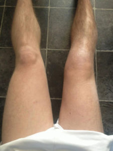 Muscoli atrofia dopo una frattura