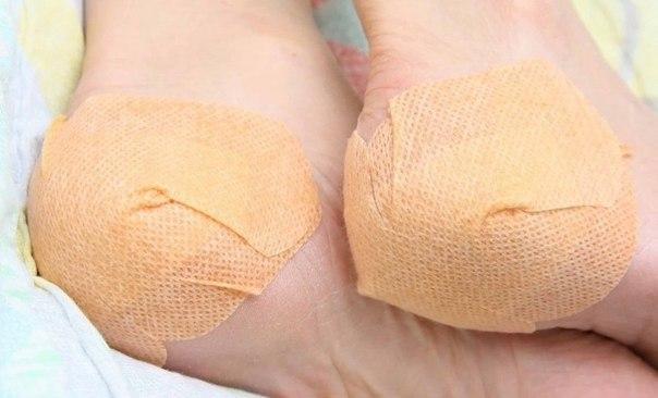 Krakket komprimerer på hæle