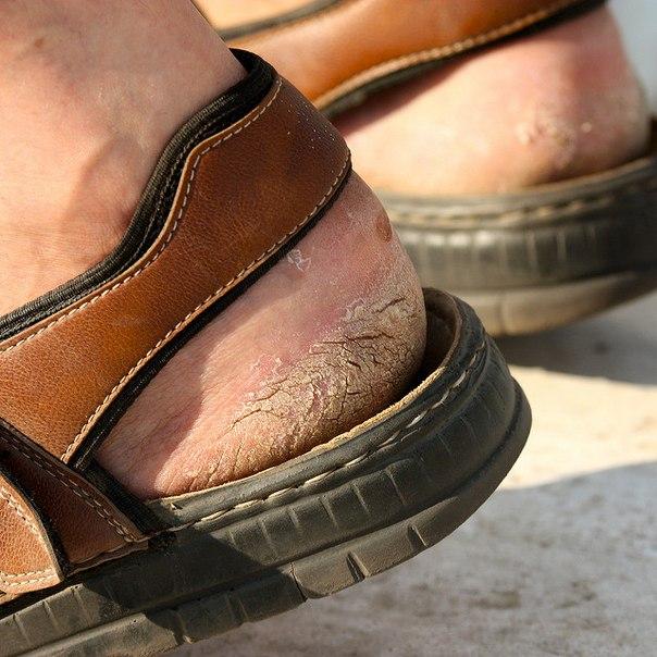 Sprækker på hæle fra spansparenterne og sandalerne