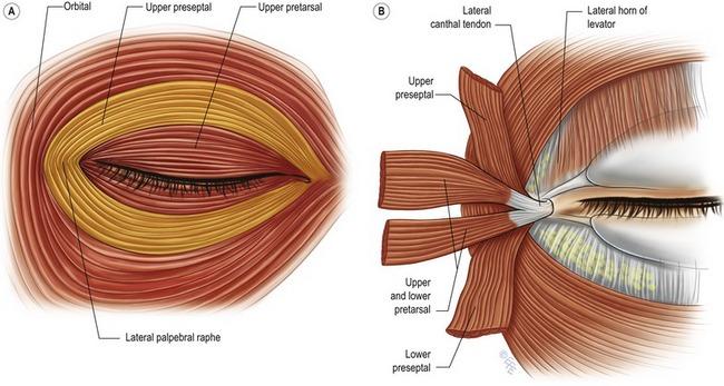 Can Medial Retinaculum Tear