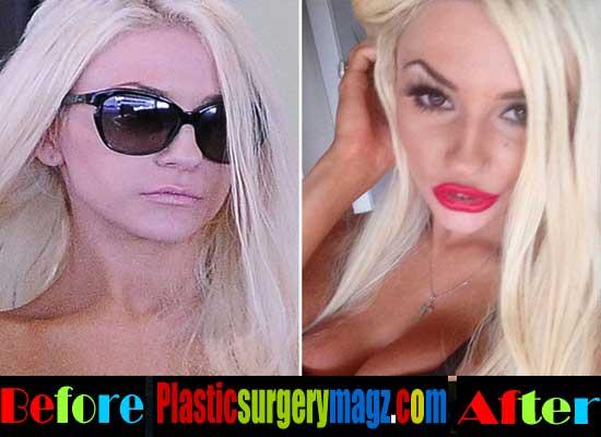 Courtney Stodden Lip Surgery