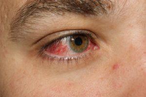 Лечение покраснения в уголке глаза
