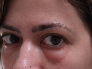 Как быстро убрать отечность с глаз