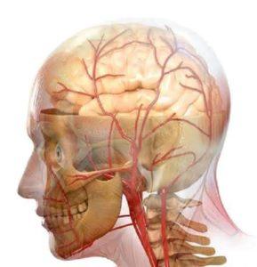 obrzęk mózgu