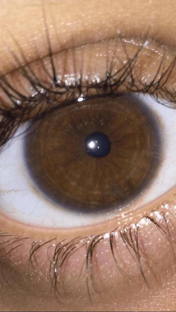 I Have Brown Eyes And I Have Noticed That I Have A Blue Ring Around My Eyes What Is It Quora