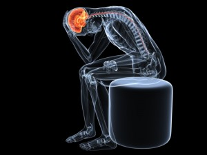 Migraine Stem Cell Therapy