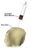 bone marrow aspiration2