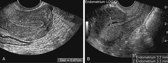Endometrial Measurements Ultrasound