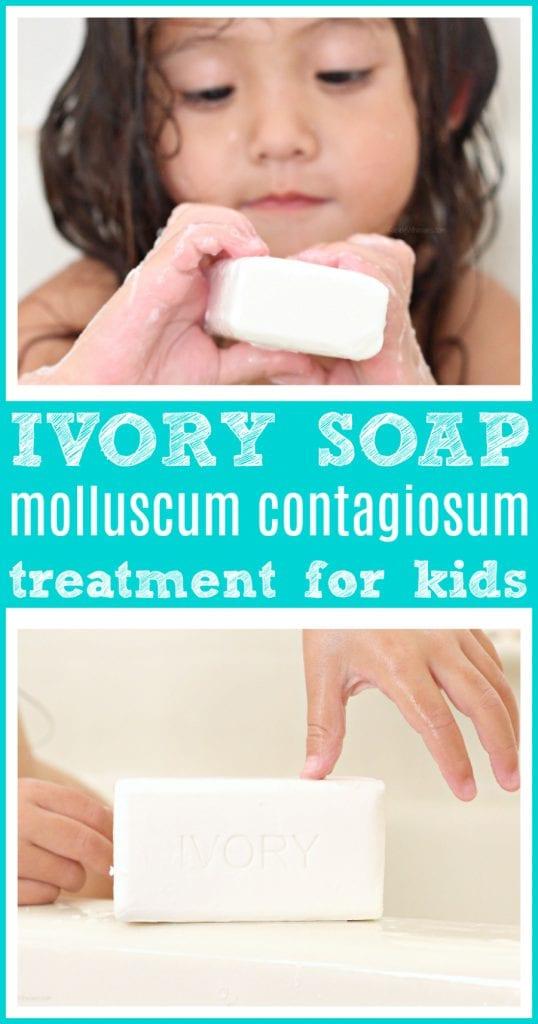 Ivory soap to treat molluscum contagiosum