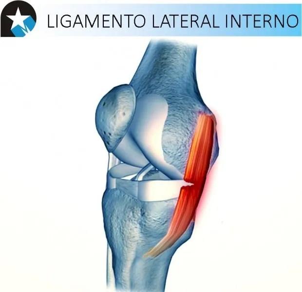 Recuperación de ligamento lateral interno - Rehabilitación Premium ...