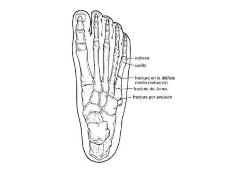 Fisioterapia deportiva fracturas del quinto metatarsiano for Cuarto y quinto metatarsiano
