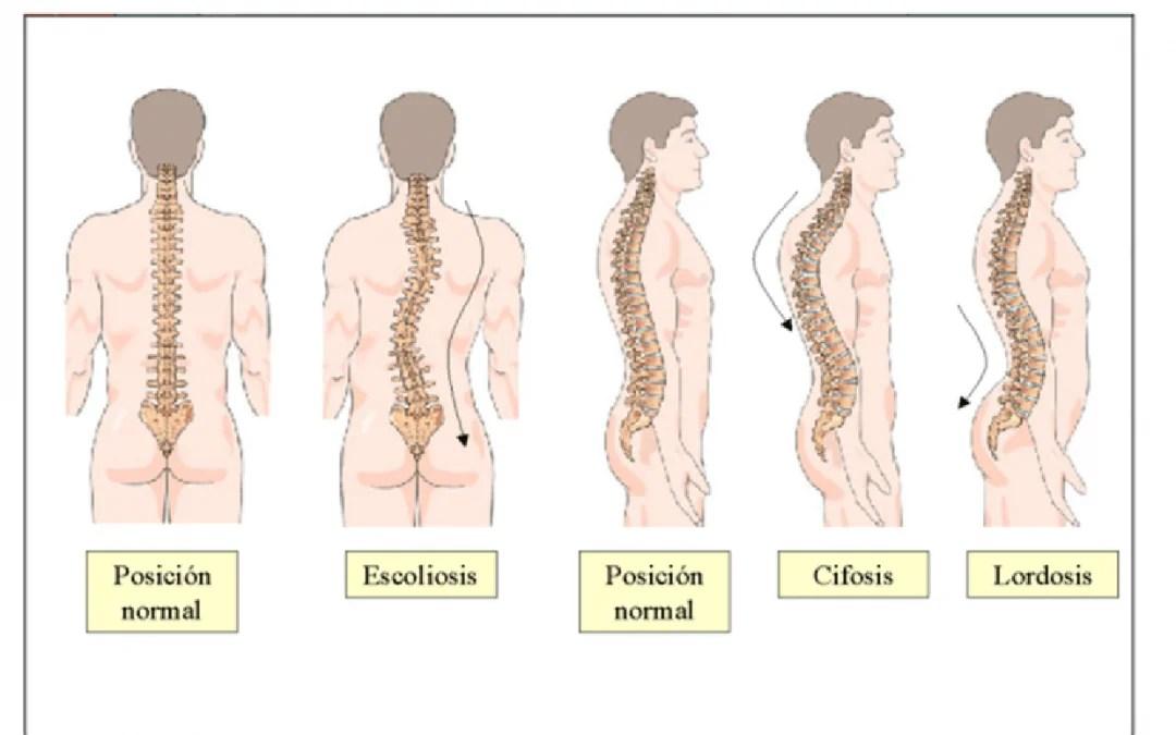 Postura y sus consecuencias - Rehabilitación Premium Madrid