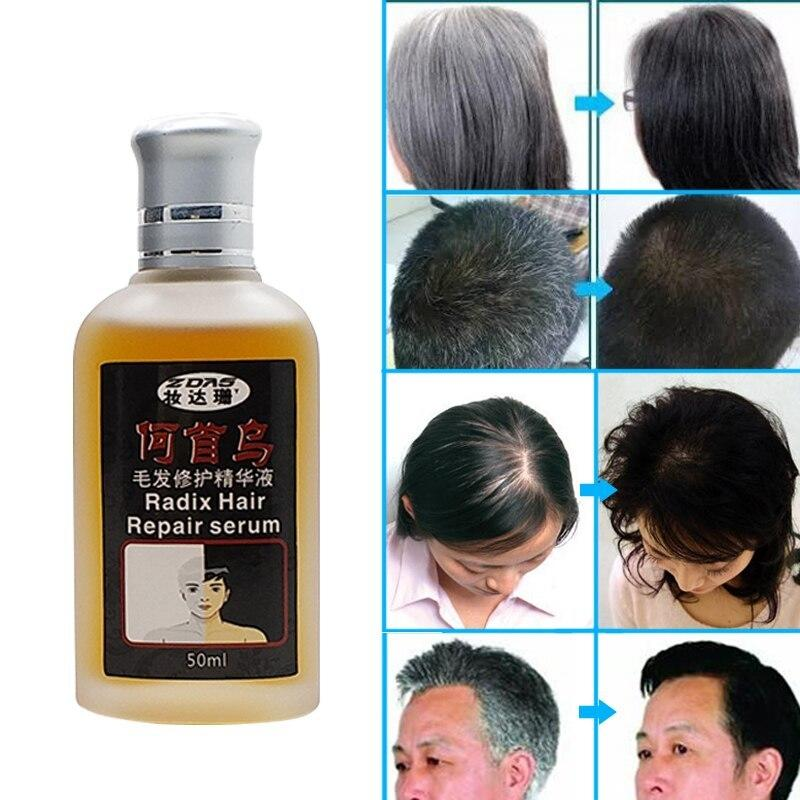 The Best Traditional Chinese Medicine Cure White Hair Turn Gray Pictures