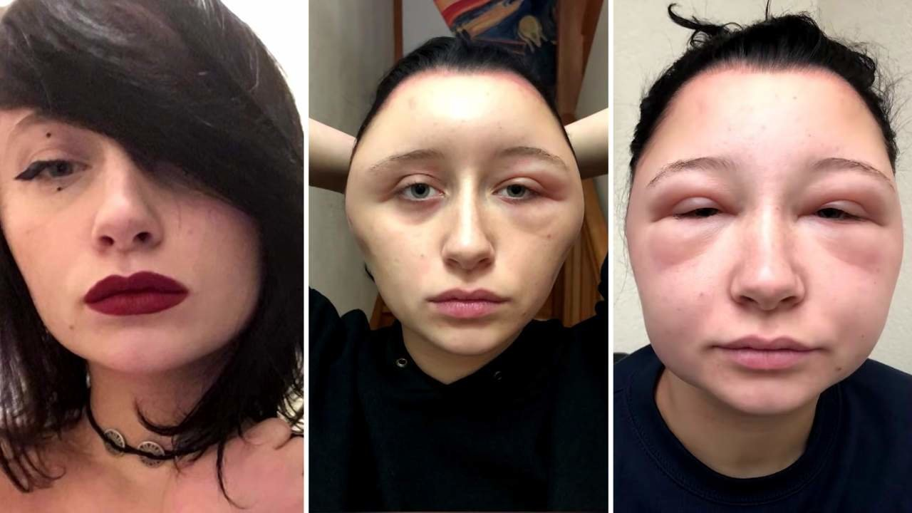 The Best Woman's Head Doubled In Size After Allergic Reaction To Pictures