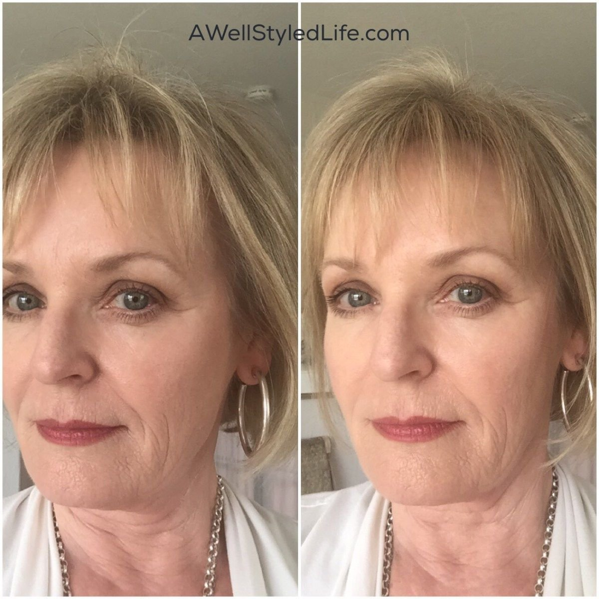 The Best Real Help For Thinning Hair In Women Over 50 Hair Thin Pictures