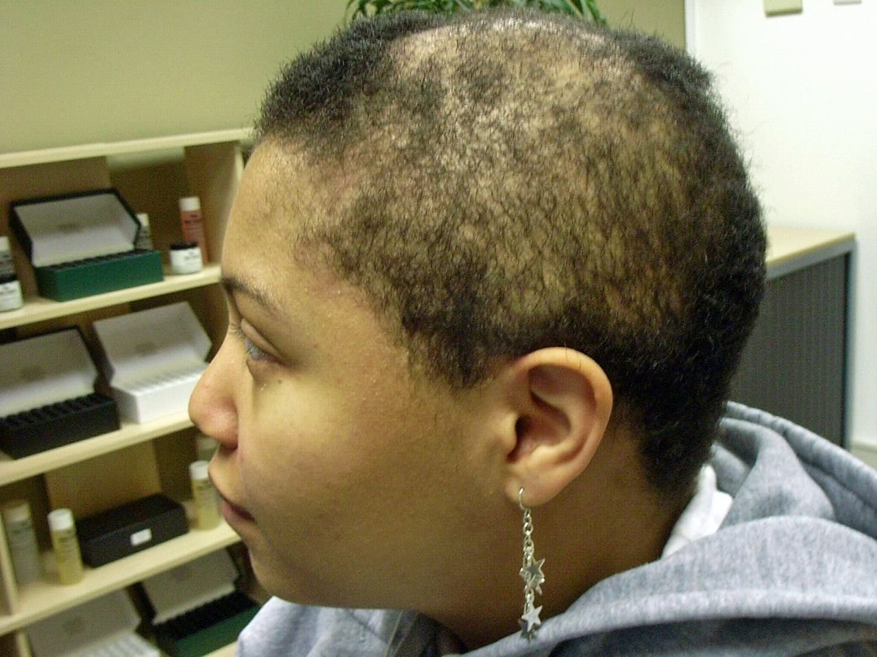 The Best Alopecia Hair Loss Treatment For More Information Pictures
