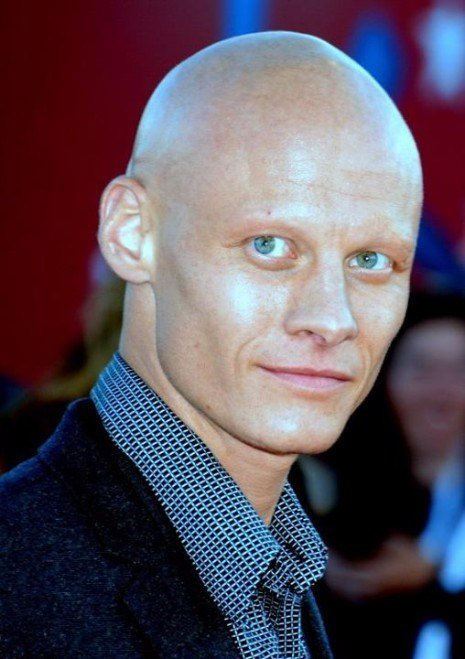 The Best 33 Hairstyles For Men Who Are Balding Hairstyles Pictures
