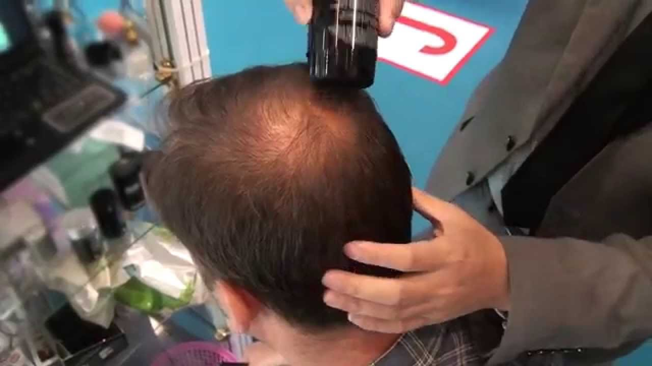 The Best Hair Thinning On The Crown Youtube Pictures