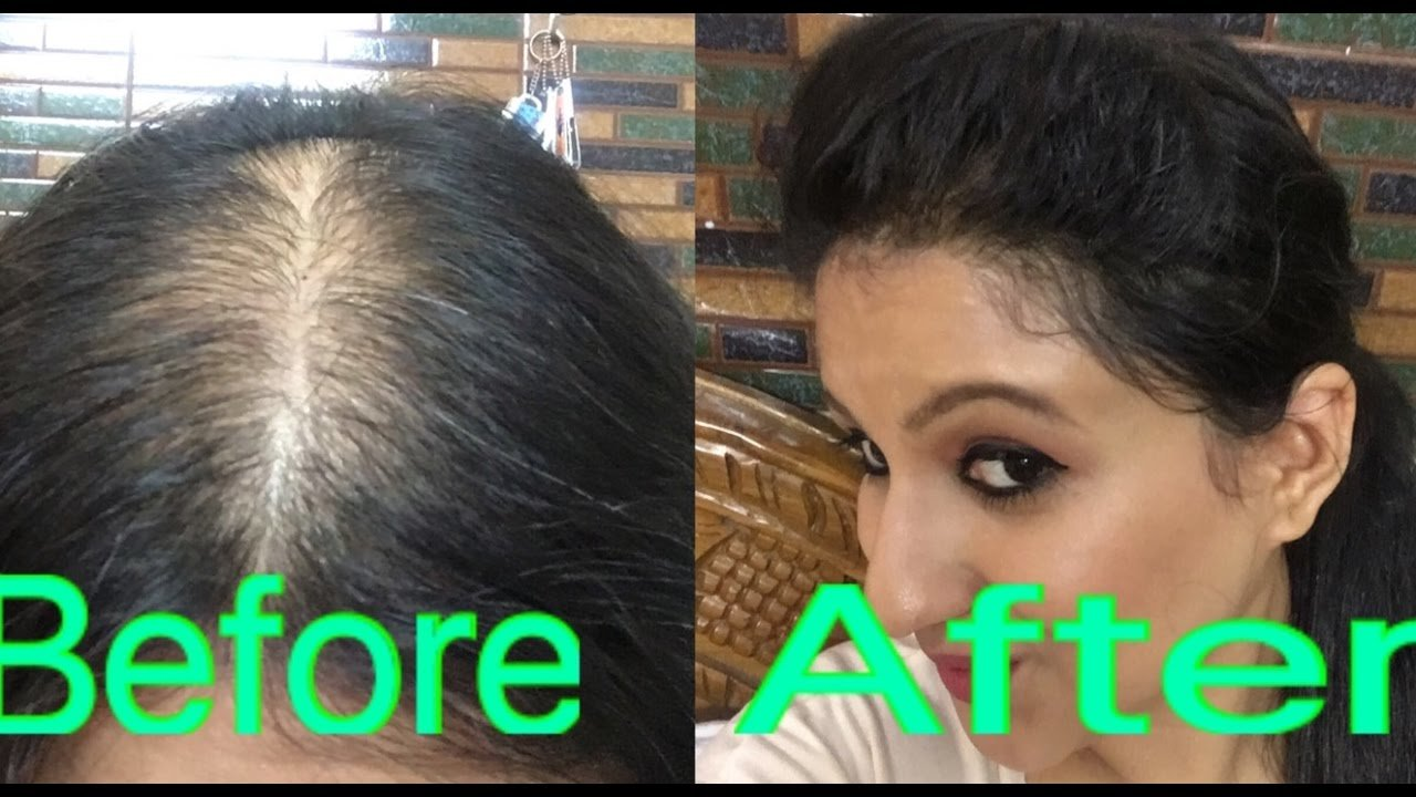 The Best How To Style Your Hair In Partial Alopecia To Hide Bald Pictures