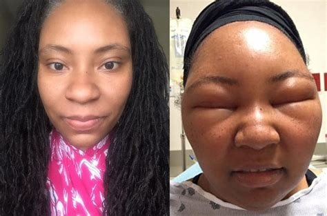 The Best Health Vlogger Chemese Armstrong S Extreme Allergic Pictures