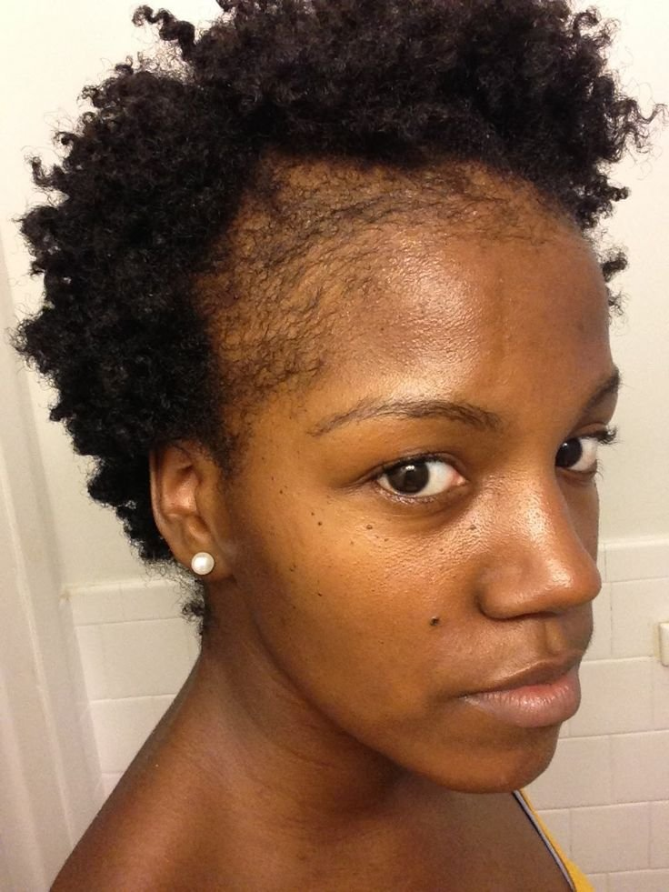 The Best Natural Hair Thinning Edges How To Grow Edges And Bald Pictures