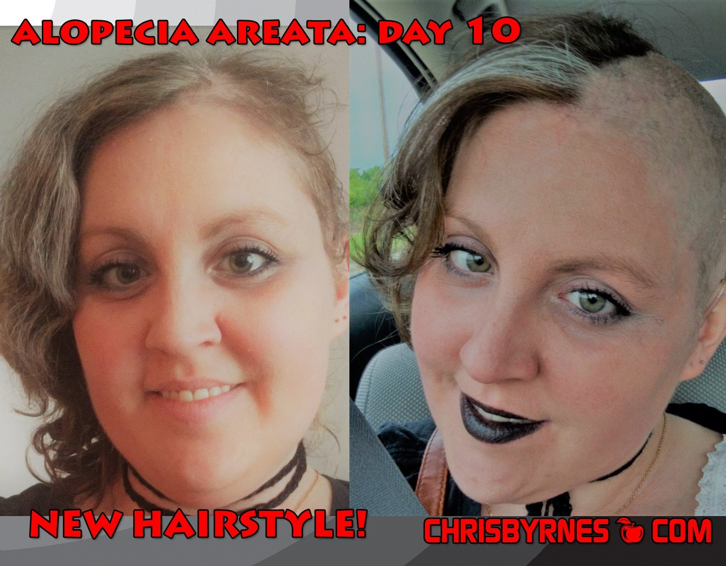 The Best New Hair Style Alopecia Areata Day 10 Chrisbyrnes Com Pictures