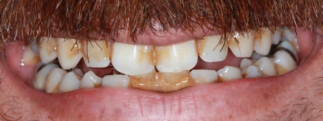 Periodontal Gum Disease Rossen Dental The Colony Tx