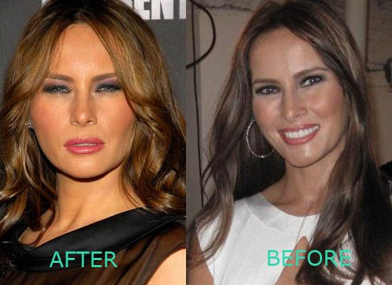 Melania Trump, lay off the botox! | Celebrity Plastic ...