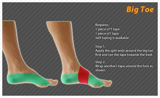 Foot Anatomy Big Toe Sprain
