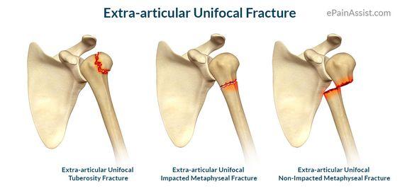 Broken Shoulder Humerus Healing Time