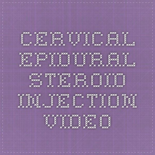 Facet Injections Vs Epidural Block