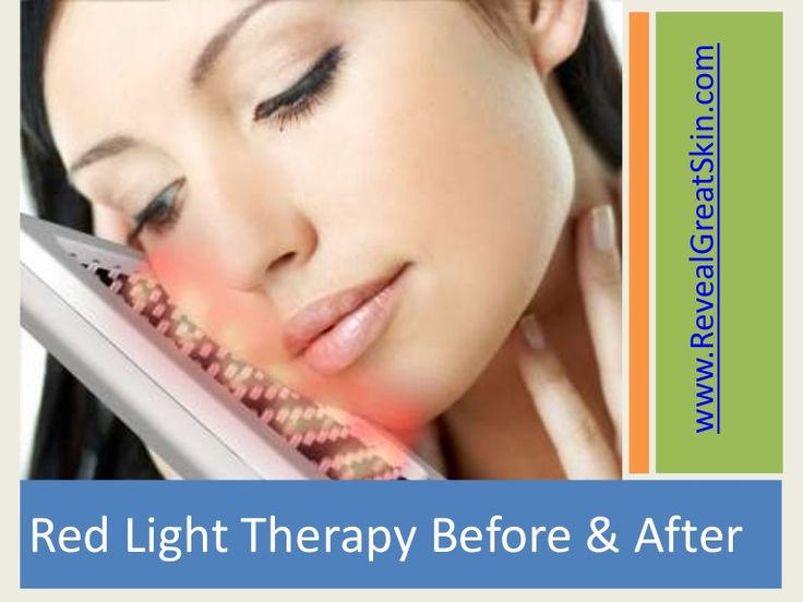 Red Light Therapy Bulbs