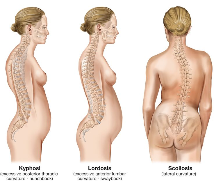 Lordosis Get You How Do