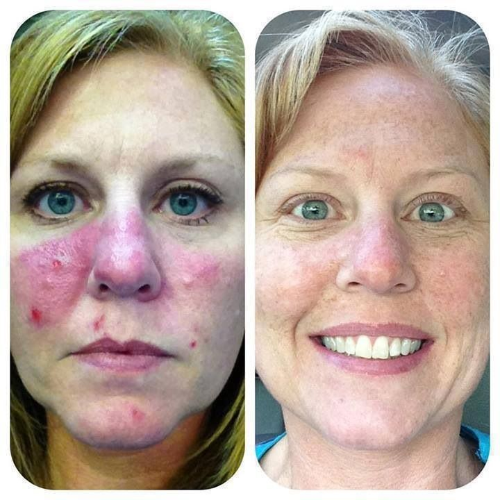 Skin Care Products Reviews Dermatologists