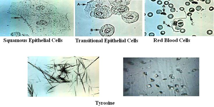 Abnormal Epithelial Cells Urine