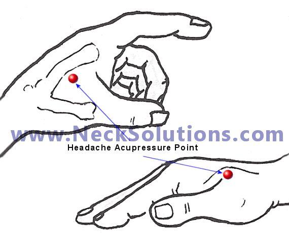 Acupressure Points Headaches Chart