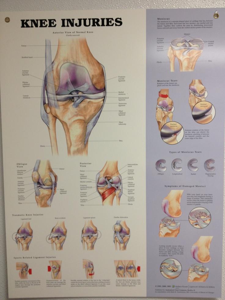 Chart Location Pain Knee