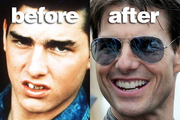Bad Baby Teeth Famous