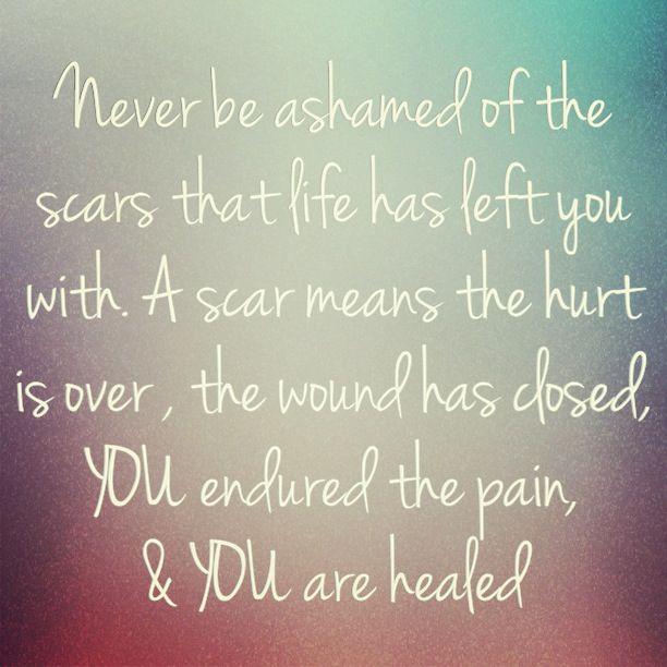 Love Hurts Love Scars