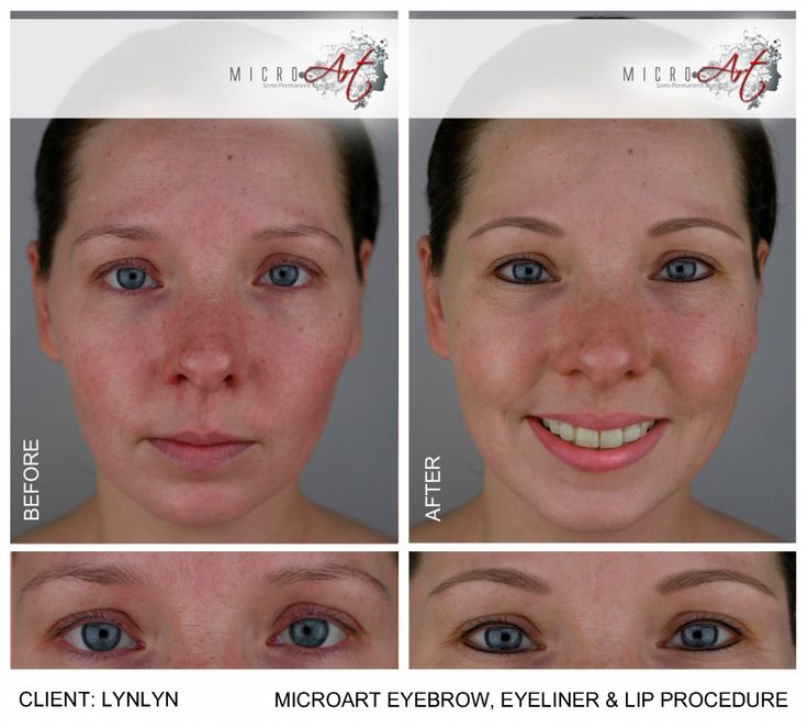 Eyebrow Piercing Side Effects