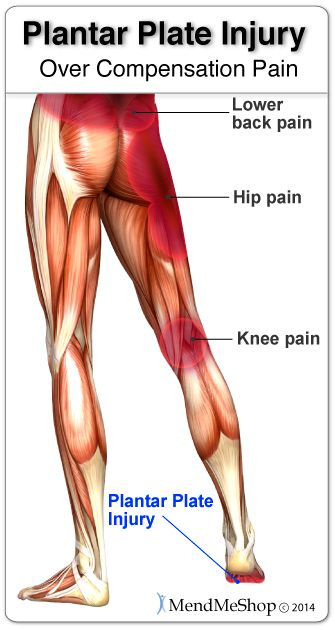 How Do You Treat Plantaris Muscle Pain