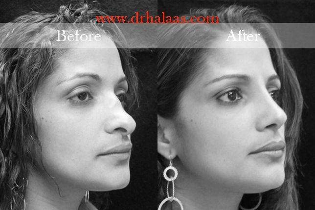 Best Rhinoplasty York New