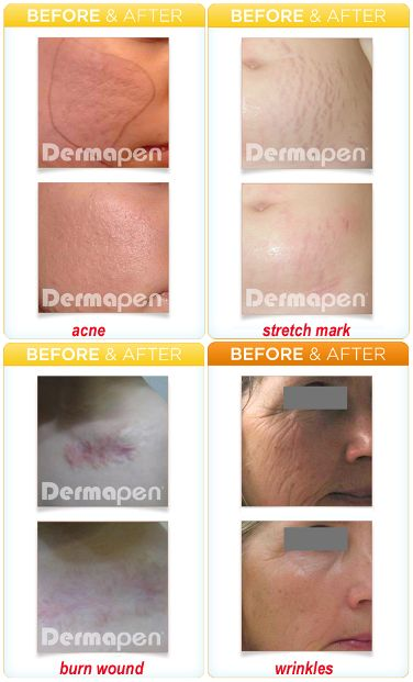 Skinlab Care Acne Fresh Lotion