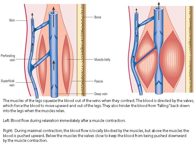 Endovenous Laser Ablation Greater Saphenous Vein